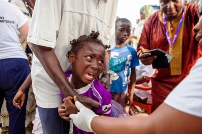 Une épidémie de rougeole fait rage en Guinée